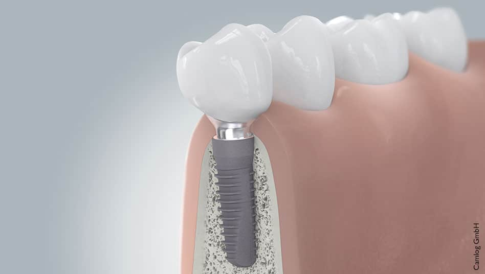 Implantat Brücke Zahnarzt Zähne Zahnwurzel Implantate