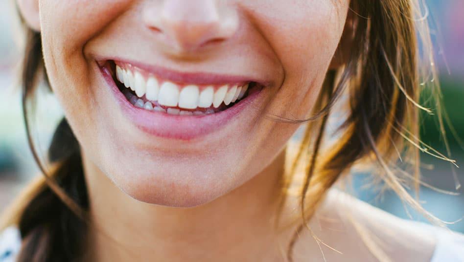 Zahnästhetik makellose Zähne