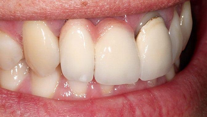Zahnersatz ist nicht gleich Zahnersatz