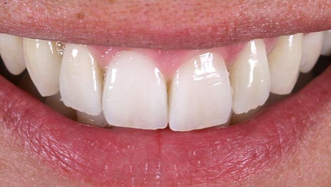 vorher nachher weiße Zähne