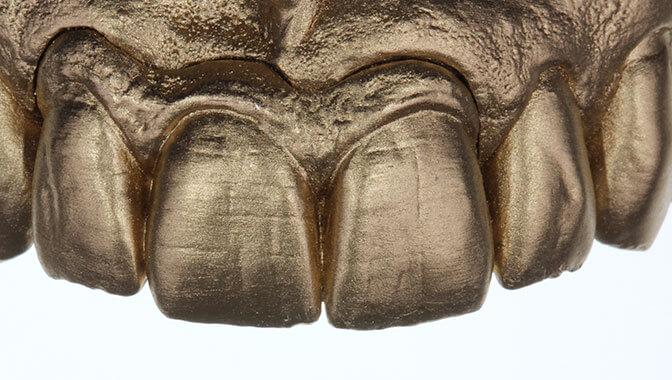 Zahnersatz Schneidezähne