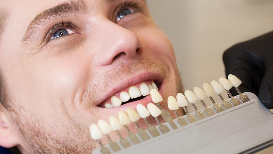 Strahlend weisse Zähne perfektes Lächeln Bleaching