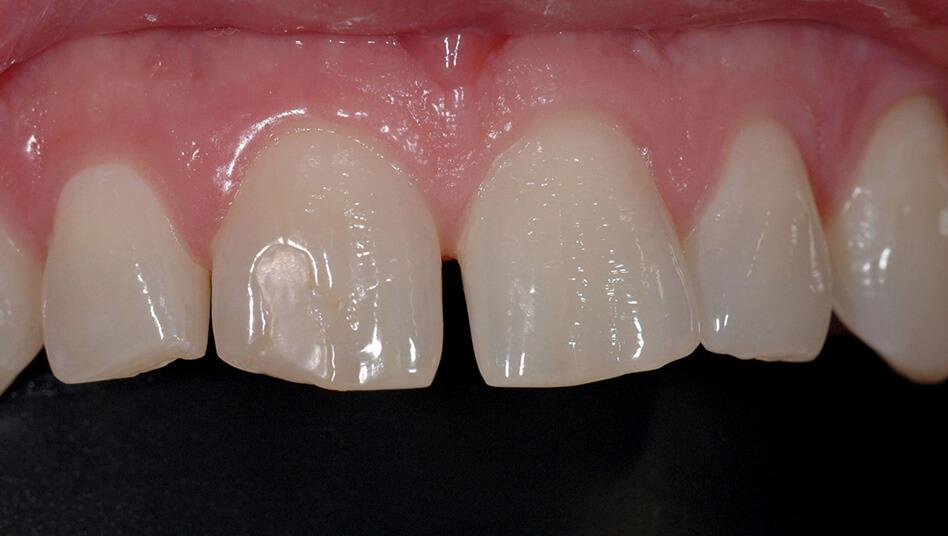 Die Zähne stehen X-beinig