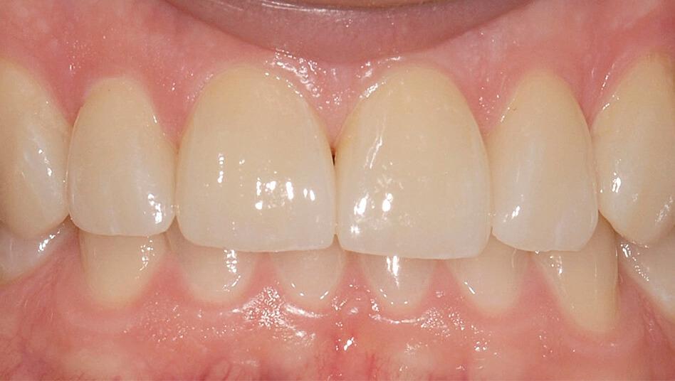 Vier Wochen nach der Behandlung keine Zahnlücken