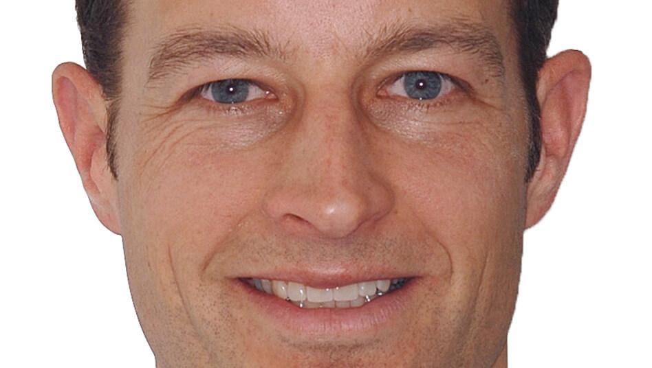 Zahnzwischenräume geschlossen