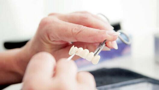 Zahn Close up ästhetische Zahnmedizin