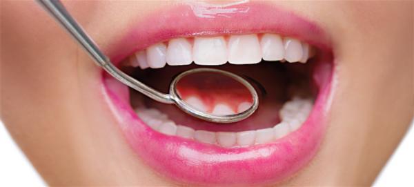 Magazin Zahnfleisch