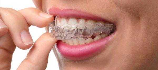 Zahnschienen