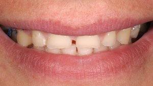 Starke Abrasion der Zähne im Detail