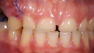 Ersetzen fehlender Zähne durch Implantate
