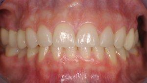 Verlängerung der Zähne durch Veneers