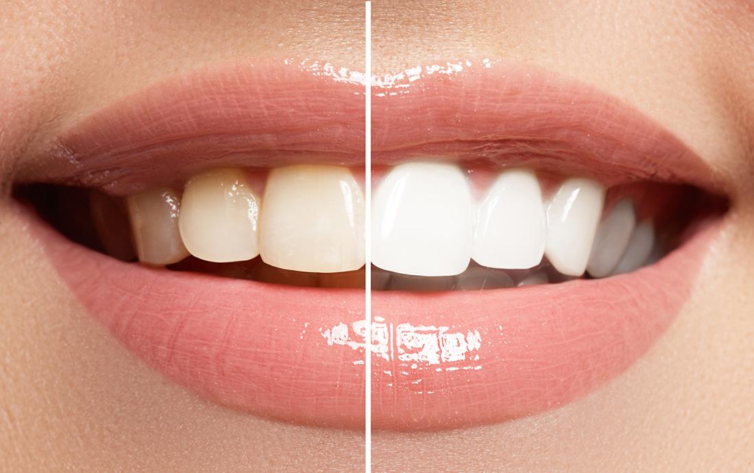 Bleaching: Zähne bleichen und aufhellen. Auch Zahnbleaching und Zahnaufhellung genannt.