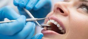 Zahnersatz Kosten – Kostenübernahme Krankenkasse